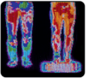 Ergomat Thermal Imaging